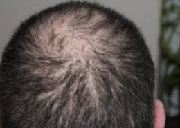 Are there hair loss treatments near me?