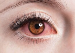 What Is Pink Eye And How You Can Get Rid Of It ?
